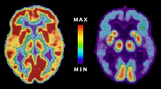 brainscans.png